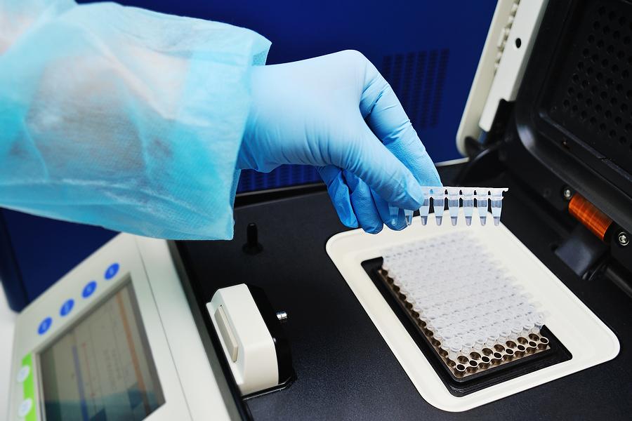 Норма уреаплазмы в организме: расшифровка анализов, нормальные показатели у мужчин и женщин
