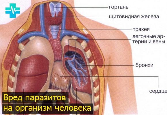 Народные средства для выведения паразитов из организма
