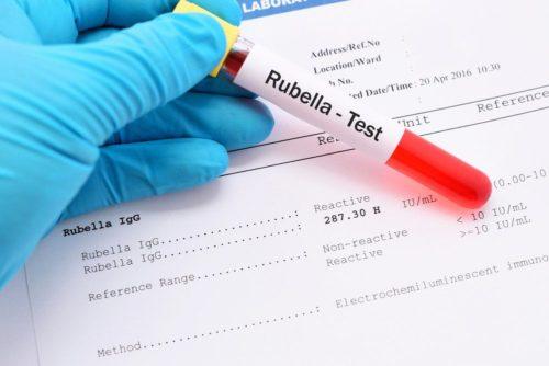 Токсоплазмоз анализ крови расшифровка